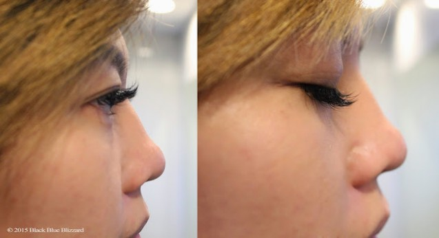 Setelah Eyelash Extention